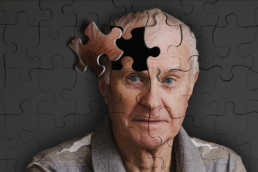 CBD Oil For Dementia In Adults